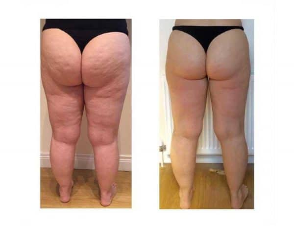After 8 Lipofirm Treatments