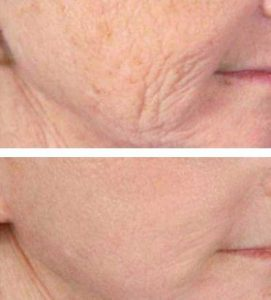 After 8 Oxygeneo Treatments