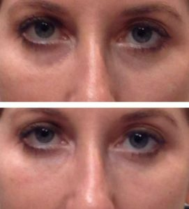 After 1 Oxygeneo Treatment