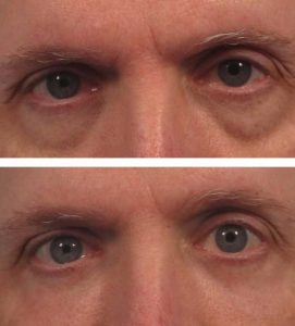 After 5 Oxygeneo Treatments