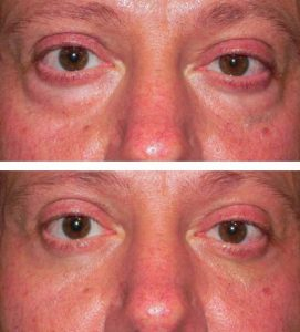 After 3 Oxygeneo Treatments
