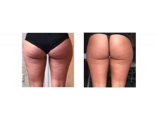 After 1 Lipofirm Treatment