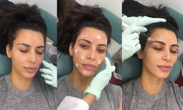 Kim Kardashian is a fan of Micro Needling
