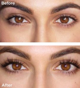 Lash Perfect Eyelash Extensions at VL Aesthetics