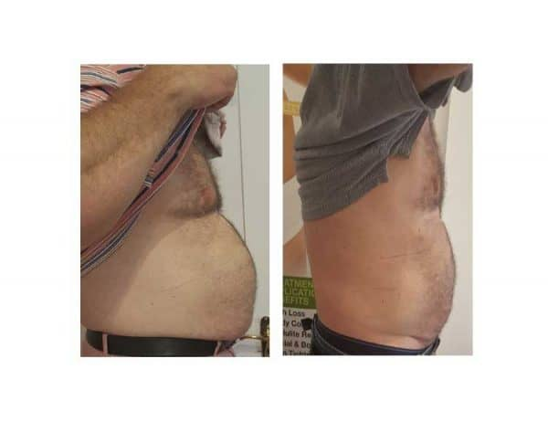 After 6 Lipofirm Treatments