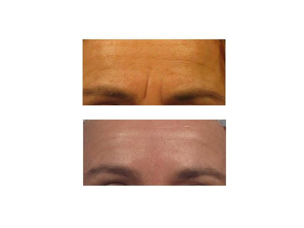Botox, Juvederm, and other cosmetic injectables at VL Aesthetics