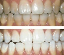 Zoom Teeth Whitening at VL Aesthetics
